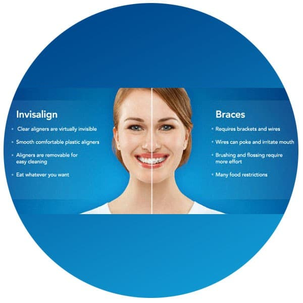 Invisalign Smile Direct Club